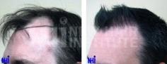 Hair Transplant (77/83)