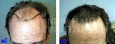 Hair Transplant (78/83)
