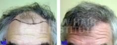 Hair Transplant (79/83)