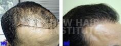 Hair Transplant (80/83)