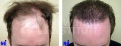 Hair Transplant (81/83)