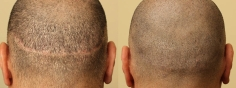 Scalp MicroPigmentation (5/114)