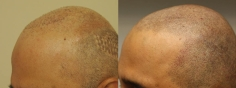 Scalp MicroPigmentation (6/114)