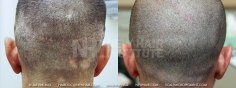 Scalp MicroPigmentation (8/114)