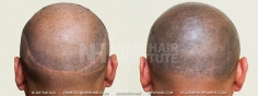 Scalp MicroPigmentation (9/114)