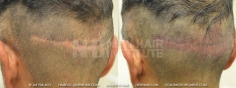 Scalp MicroPigmentation (10/114)