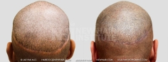 Scalp MicroPigmentation (11/114)