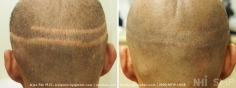 Scalp MicroPigmentation (12/114)