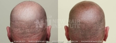 Scalp MicroPigmentation (15/114)