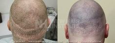 Scalp MicroPigmentation (17/114)