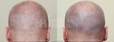 Scalp MicroPigmentation (20/114)
