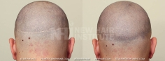 Scalp MicroPigmentation (22/114)