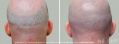 Scalp MicroPigmentation (26/114)