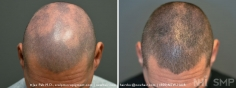 Scalp MicroPigmentation (27/114)