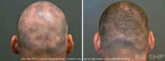 Scalp MicroPigmentation (28/114)