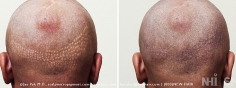 Scalp MicroPigmentation (29/114)