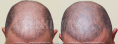 Scalp MicroPigmentation (33/114)