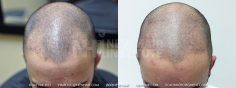 Scalp MicroPigmentation (35/114)