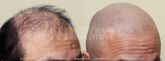 Scalp MicroPigmentation (38/114)