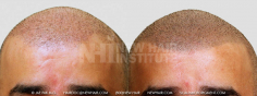 Scalp MicroPigmentation (43/114)