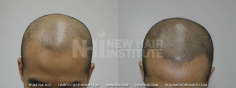 Scalp MicroPigmentation (45/114)