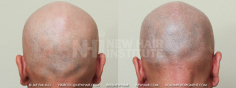 Scalp MicroPigmentation (46/114)