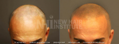 Scalp MicroPigmentation (50/114)