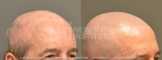 Scalp MicroPigmentation (51/114)