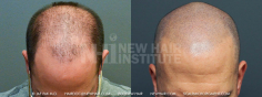 Scalp MicroPigmentation (54/114)