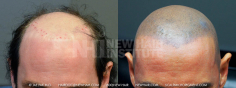 Scalp MicroPigmentation (55/114)