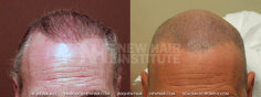Scalp MicroPigmentation (57/114)