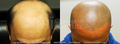 Scalp MicroPigmentation (60/114)