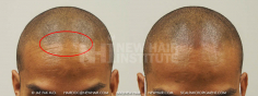 Scalp MicroPigmentation (61/114)