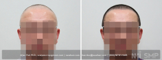 Scalp MicroPigmentation (63/114)