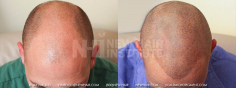 Scalp MicroPigmentation (66/114)