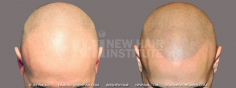 Scalp MicroPigmentation (67/114)