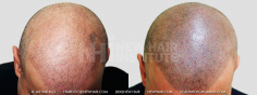 Scalp MicroPigmentation (70/114)