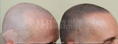 Scalp MicroPigmentation (71/114)