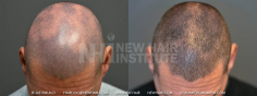 Scalp MicroPigmentation (72/114)