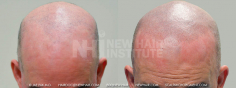Scalp MicroPigmentation (73/114)