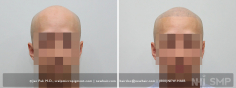 Scalp MicroPigmentation (74/114)