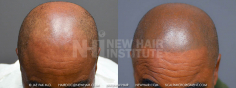 Scalp MicroPigmentation (75/114)