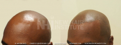 Scalp MicroPigmentation (79/114)
