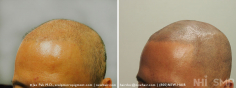 Scalp MicroPigmentation (80/114)