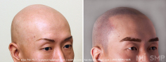 Scalp MicroPigmentation (81/114)