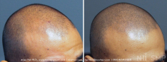 Scalp MicroPigmentation (83/114)
