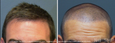 Scalp MicroPigmentation (84/114)