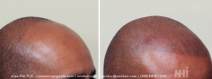 Scalp MicroPigmentation (85/114)