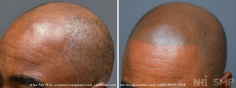 Scalp MicroPigmentation (86/114)