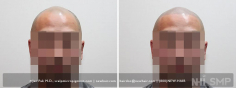 Scalp MicroPigmentation (87/114)